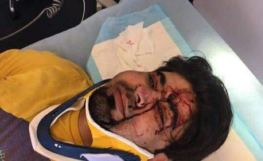 Mazlum der blev angrebet på Amager
