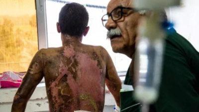 Tyrkiet benægter det, schweizisk laboratorium beviser, at de har brugt fosfor i Rojava