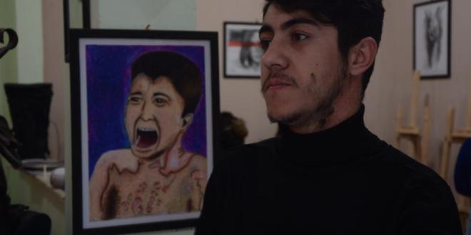 Handicap forhindrede ham ikke i at opfylde drømmen som kunstner